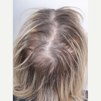 65-74 year old woman treated with PRP for Hair Loss before 3615622
