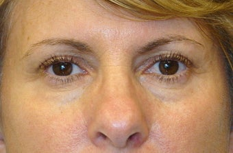 Active FX Laser Resurfacing before 104115