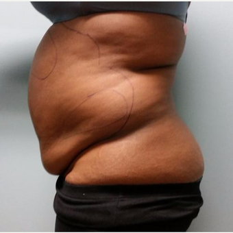 35-44 year old woman treated with Lipotherme before 3763948