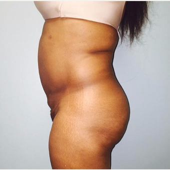 35-44 year old woman treated with Lipotherme after 3763948
