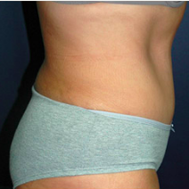 45 year old woman treated with Tummy Tuck after 3578385