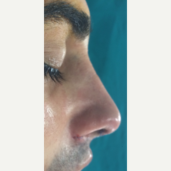 25-34 year old man treated with Rhinoplasty after 3826179