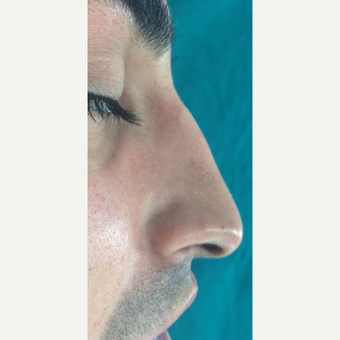 25-34 year old man treated with Rhinoplasty before 3826179