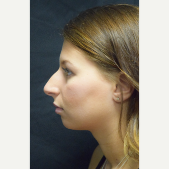 18-24 year old woman treated with Rhinoplasty before 3179633