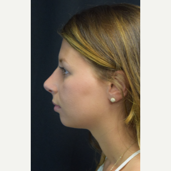 18-24 year old woman treated with Rhinoplasty after 3179633