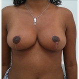 18-24 year old woman treated with Breast Reduction after 1780056