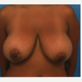 18-24 year old woman treated with Breast Reduction before 1780056