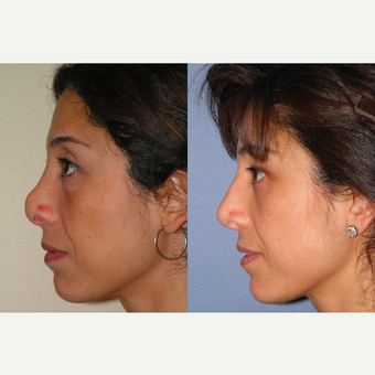 45-54 year old woman treated with Revision Rhinoplasty before 3521326