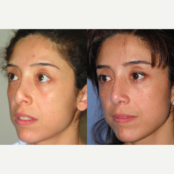 45-54 year old woman treated with Revision Rhinoplasty after 3521326