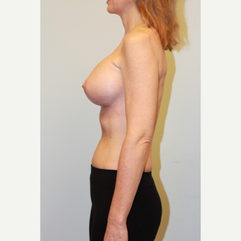 35-44 year old woman treated with Breast Implants after 3026954