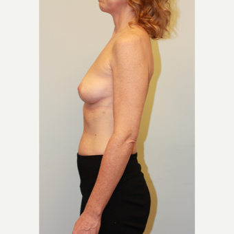 35-44 year old woman treated with Breast Implants before 3026954