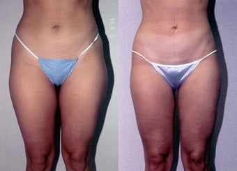 30-year-old woman treated with Liposuction. before 3287330