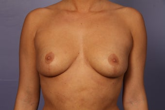 Breast Augmentation before 962033