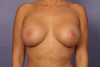 Breast Augmentation after 962033