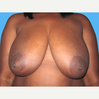 Breast Reduction before 3809958