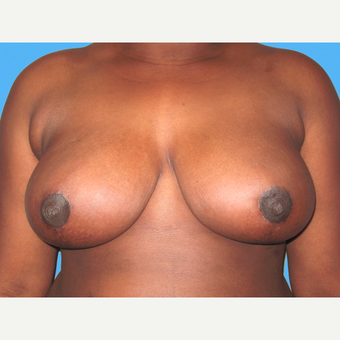 Breast Reduction after 3809958