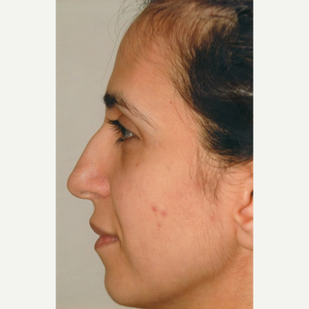 35-44 year old woman treated with Rhinoplasty before 3465399