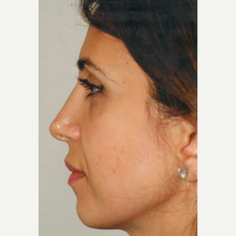 35-44 year old woman treated with Rhinoplasty after 3465399