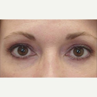 45-54 year old woman treated with Eye Bags Treatment after 1789636