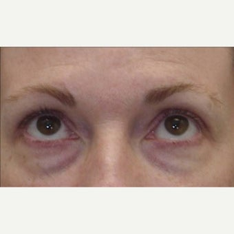 45-54 year old woman treated with Eye Bags Treatment before 1789636
