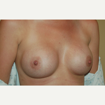 25-34 year old woman treated with Breast Implants after 3497934