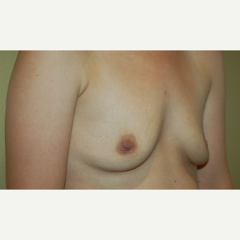 25-34 year old woman treated with Breast Implants before 3497934