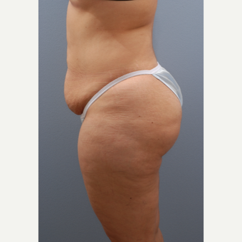 35-44 year old woman treated with Tummy Tuck before 3590102