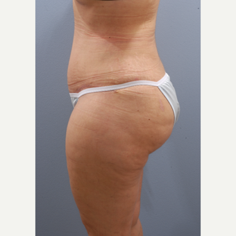 35-44 year old woman treated with Tummy Tuck after 3590102