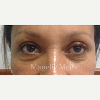 55-64 year old woman treated with Eye Bags Treatment after 3647482