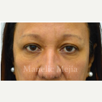 55-64 year old woman treated with Eye Bags Treatment before 3647482