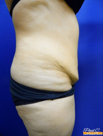 25-34 year old woman treated with Tummy Tuck before 3603874
