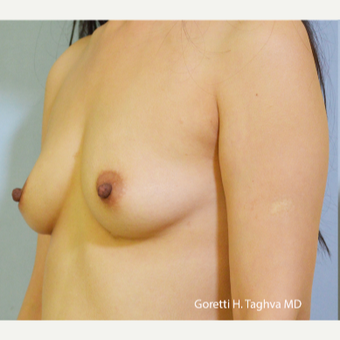 35-44 year old woman treated with Breast Augmentation before 3653027