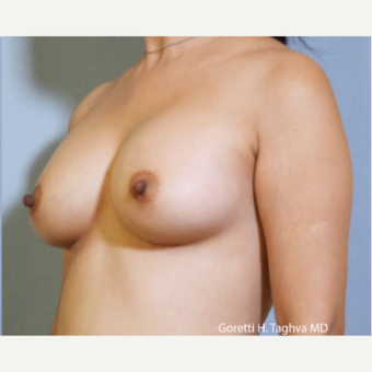35-44 year old woman treated with Breast Augmentation after 3653027