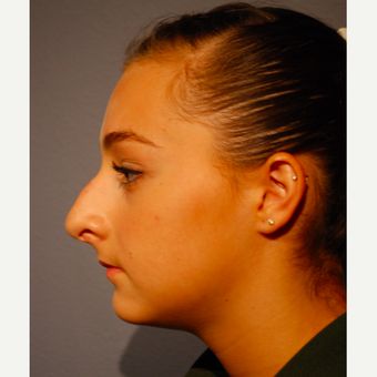 17 or under year old woman treated with Rhinoplasty before 3277653