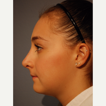 17 or under year old woman treated with Rhinoplasty after 3277653