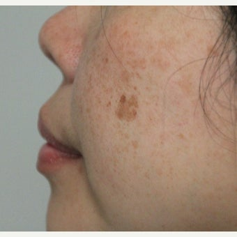 45-54 year old woman treated with Age Spots Treatment before 2214457
