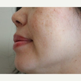45-54 year old woman treated with Age Spots Treatment after 2214457