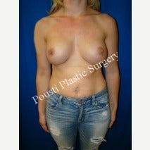 18-24 year old woman treated with Breast Implants before 1600121