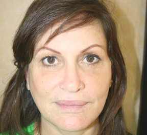Mini Face Lift, Brow Lift and Upper Blepharoplasty 860853