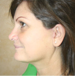 Mini Face Lift, Brow Lift and Upper Blepharoplasty after 860853