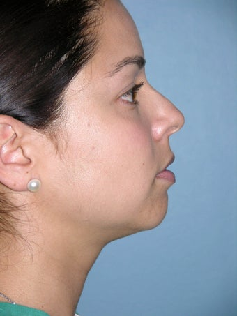 Rhinoplasty before 1363161
