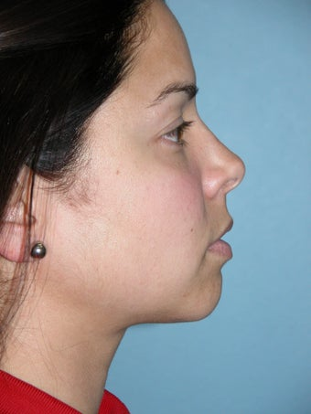 Rhinoplasty after 1363161