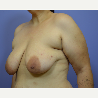 35-44 year old woman treated with Breast Lift before 3386489