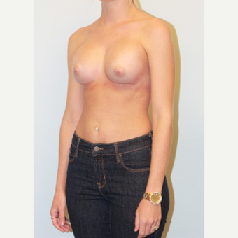 18-24 year old woman treated with Breast Augmentation after 3549660