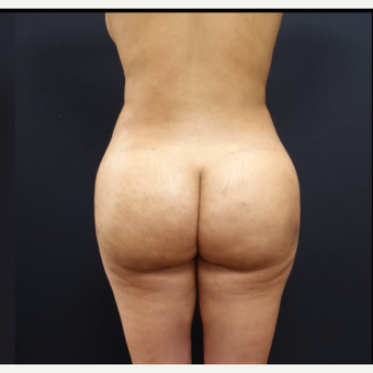 25-34 year old woman treated with Brazilian Butt Lift after 3266937