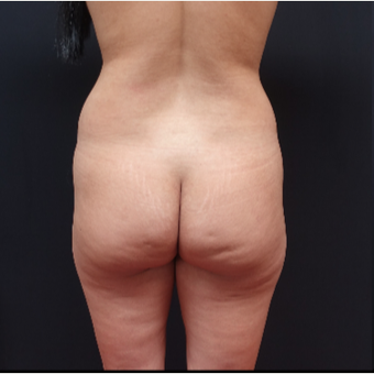 25-34 year old woman treated with Brazilian Butt Lift before 3266937