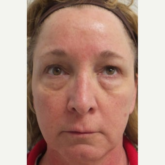 45-54 year old woman treated with Restylane before 1711678