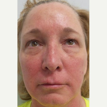 45-54 year old woman treated with Restylane after 1711678