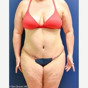 35-44 year old woman treated with Tummy Tuck after 3486707