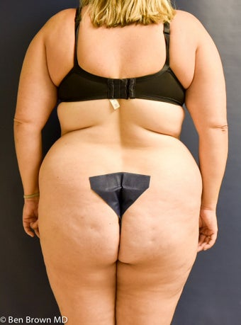 35-44 year old woman treated with Tummy Tuck 3486707